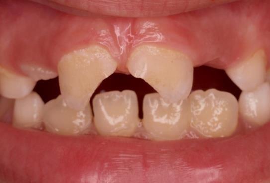 Resultado de imagen de traumatismo diente niño